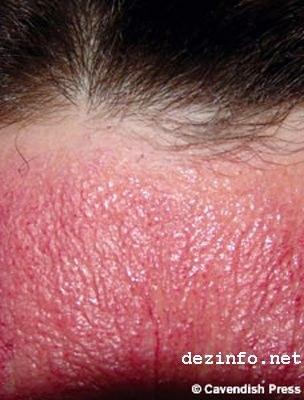 Анаферон аллергия фото